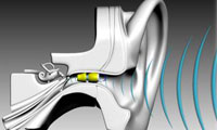 Tailored Hearing: Great Design Customized for You | Metro Hearing and Tinnitus Treatment Centre