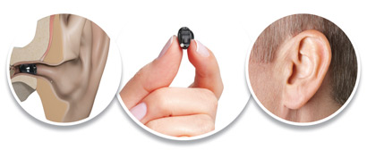 Specjalna Oferta | Metro Hearing and Tinnitus Treatment Centre